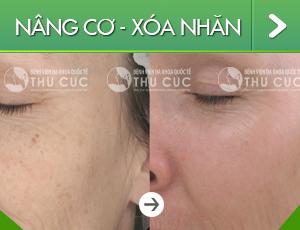 nang-co-xoa-nhan